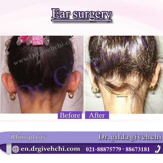 Ear surgery 2