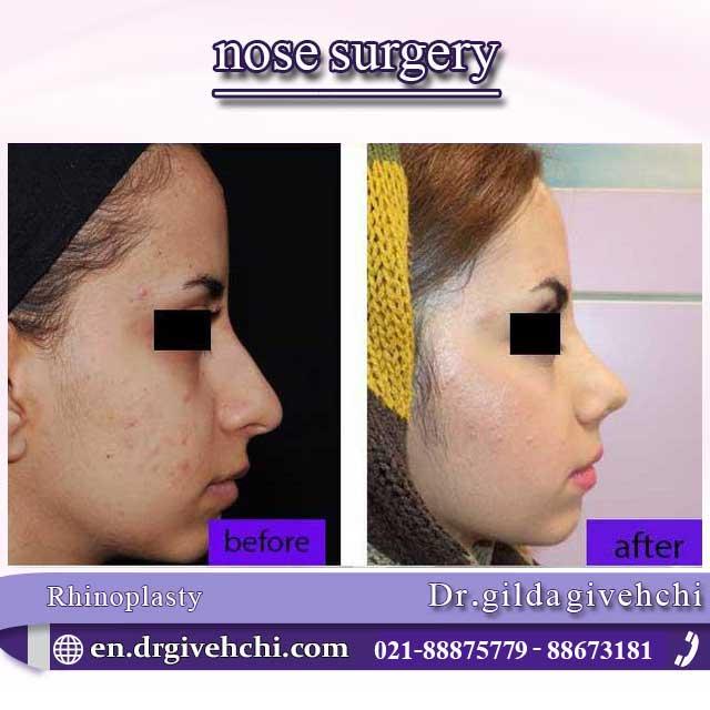 nose surgery  4